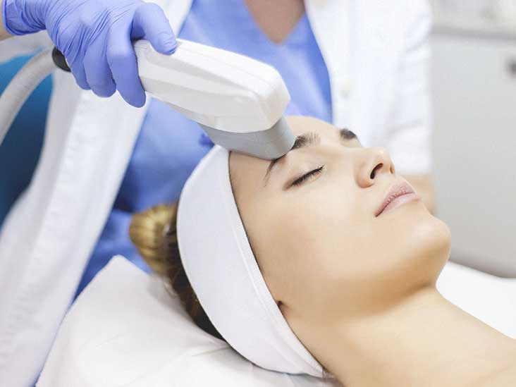 What is IPL and How does it Improve Skin Tone?